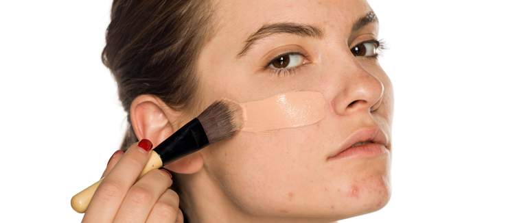 The Best Foundation For Acne E Skin